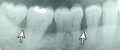 gum disease x-ray